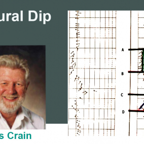 19 – Structural Dip